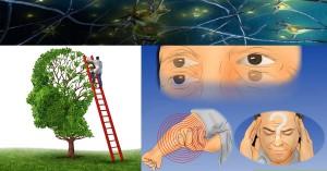 множествена склероза симптоми и иглички