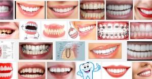пародонтит, налепи по зъбите, кариес