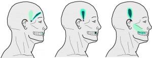 главоболие от зъб