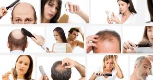 падане на коса капене опадане косопад