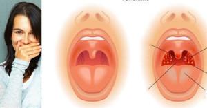 лечение на лош дъх в устата и диагностика по него