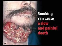 цигари отказване, цигара, тютюнопушене наредба, тютюнопушене забрана, електронна цигара, цигари цени, цигари отказване, цигари, тютюнопушене, ЕК, забрана, пушене, тютюн,