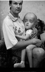 Дете след Чернобил