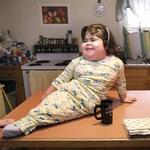 Момичето-русалка опроверга медицината в продължение на 10 години (СНИМКИ+ВИДЕО)