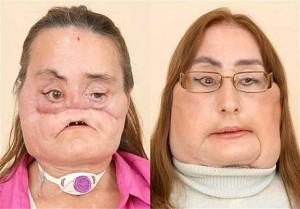 nueva-cara-transplante-mujer
