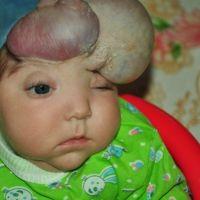 Това е малкият Анатолий, който няма череп на главата