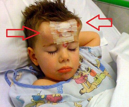 ЧУДО! Дяволски рога поникнаха на дете! (СНИМКИ)