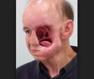 Лицето на Ерик Могер след операцията