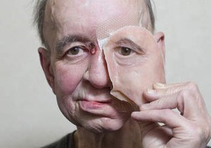 Уникалната протеза е печатана на 3D принтер