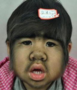 Детето страда от рядко генетично заболяване