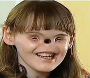 Касиди се ражда без нос и очи