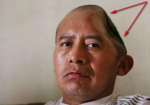 Антонио - мъжът с половин глава!