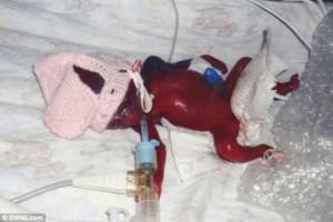 Бебе се роди и сътвори чудо!