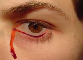 Мъжът плаче с кървави сълзи вече седем години