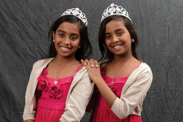 Удивителни факти за сиамските близнаци (и тризнаци)