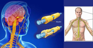 симптоми на множествена склероза, мултипленна или дисеминирана