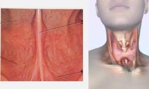импулсна терапия и зелени орехчета за щитовидна жлеза - 03