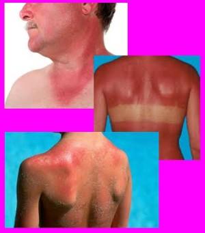 изгаряния слънчево изгаряне - 05