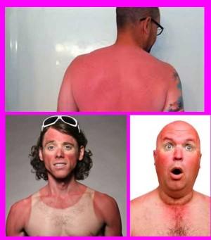 изгаряния слънчево изгаряне - 03