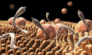 Ако мислите, че чревните паразити не са често срещани, и че вие нямате такива, може би сте в голяма грешка.