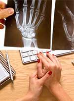 ревматоиден артрит симптоми, белези, диагностика - 0143
