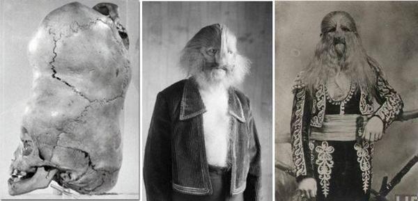 Черепът на двуглавото дете от Бенгалия и Стефан Бибровски – хора с необичайни съдби