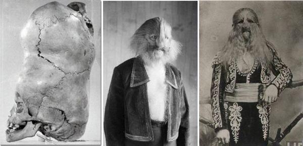 Шокиращи снимки от миналото на хора с необичайни съдби