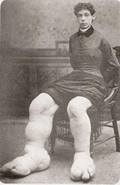 Фани Милс, момичето с най-големите крака в света, една от жените с необичайни съдби