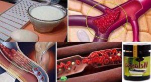 Рецепта за тромбоза – как оздравява един болен от тази опасна болест