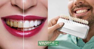 Кое е по-добро? Фасети или избелване на зъби?